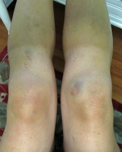 Ann knee swelling